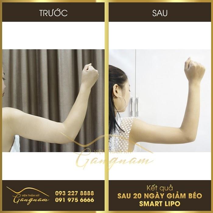 Tham khảo cách giảm béo bắp tay và vai hiệu quả